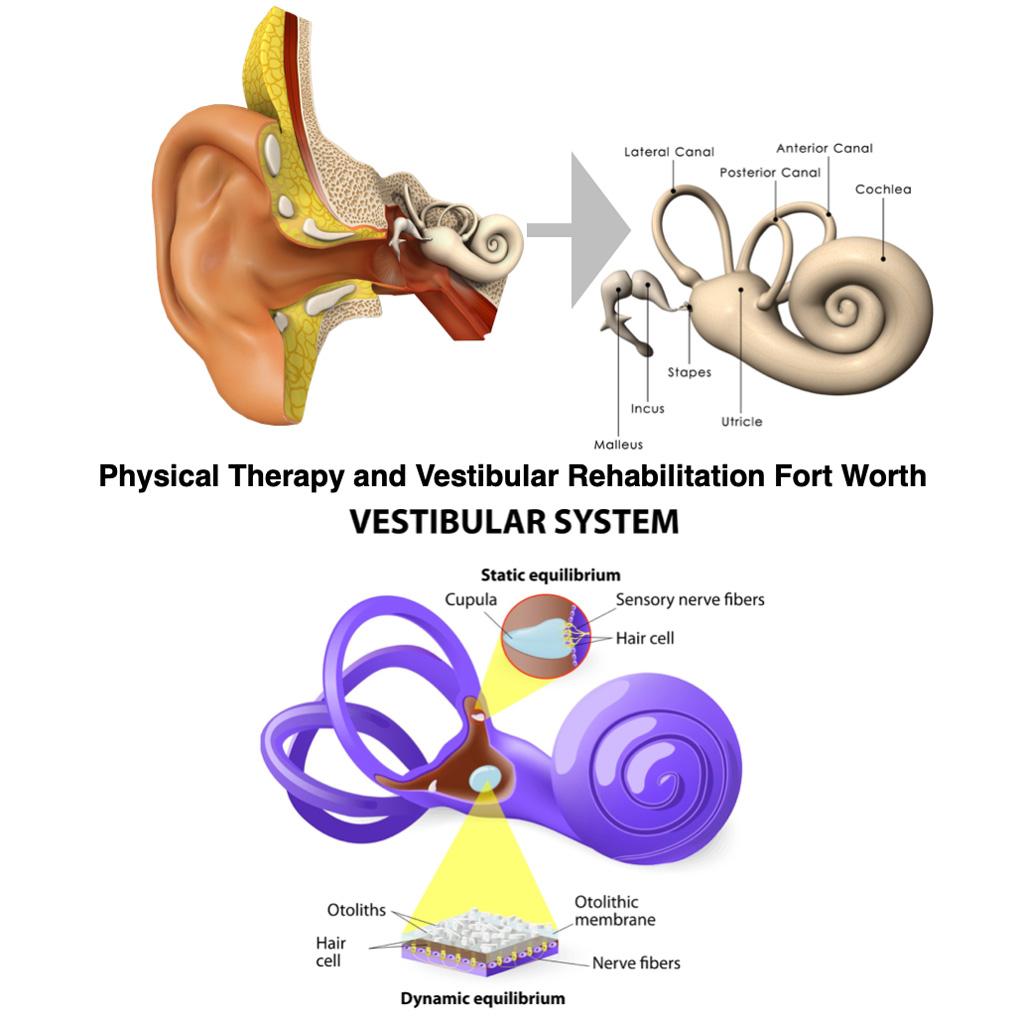Vestibular Rehabilitation Balance therapy Fort Worth